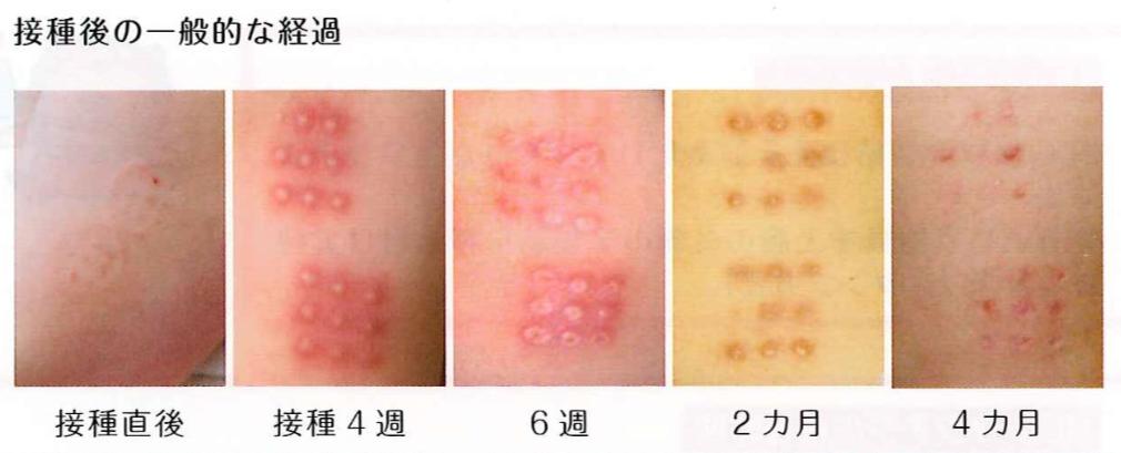 BCG接種後の通常の反応